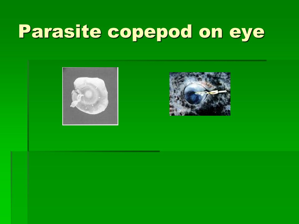Parasite copepod on eye