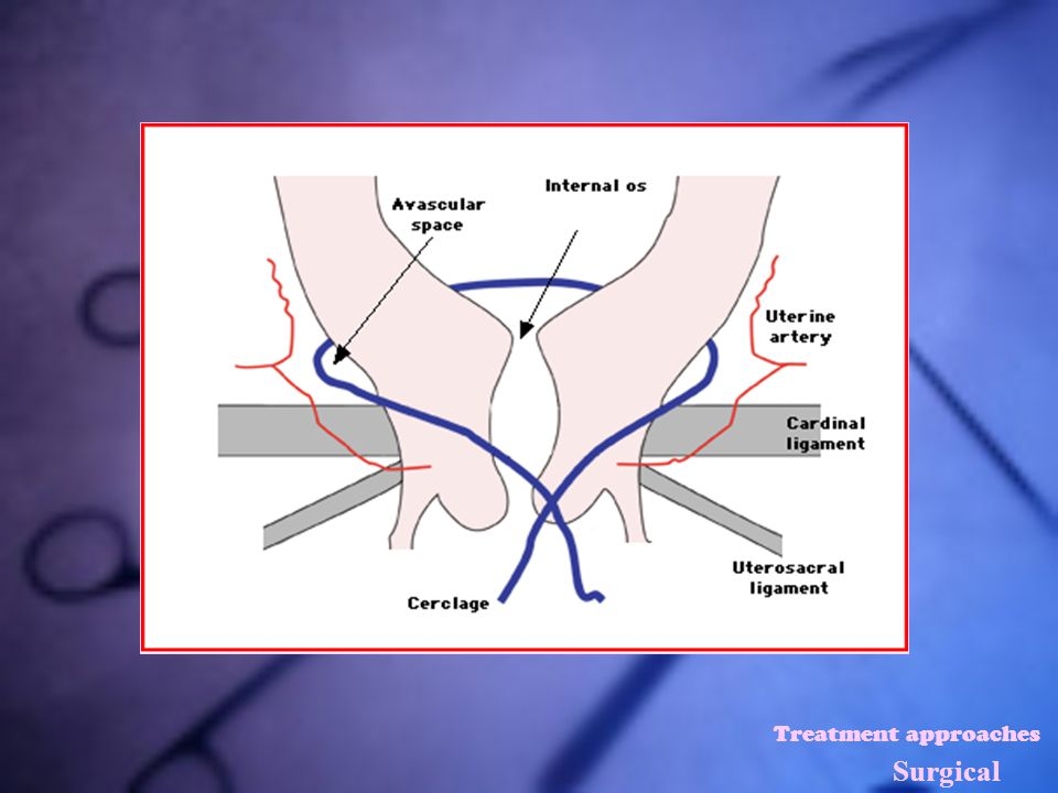 Treatment approaches Surgical