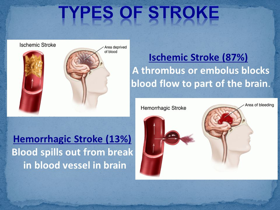 Ischemic Stroke (87%) A thrombus or embolus blocks blood flow to part of the brain. Hemorrhagic Stroke (13%) Blood spills out from break in blood vess