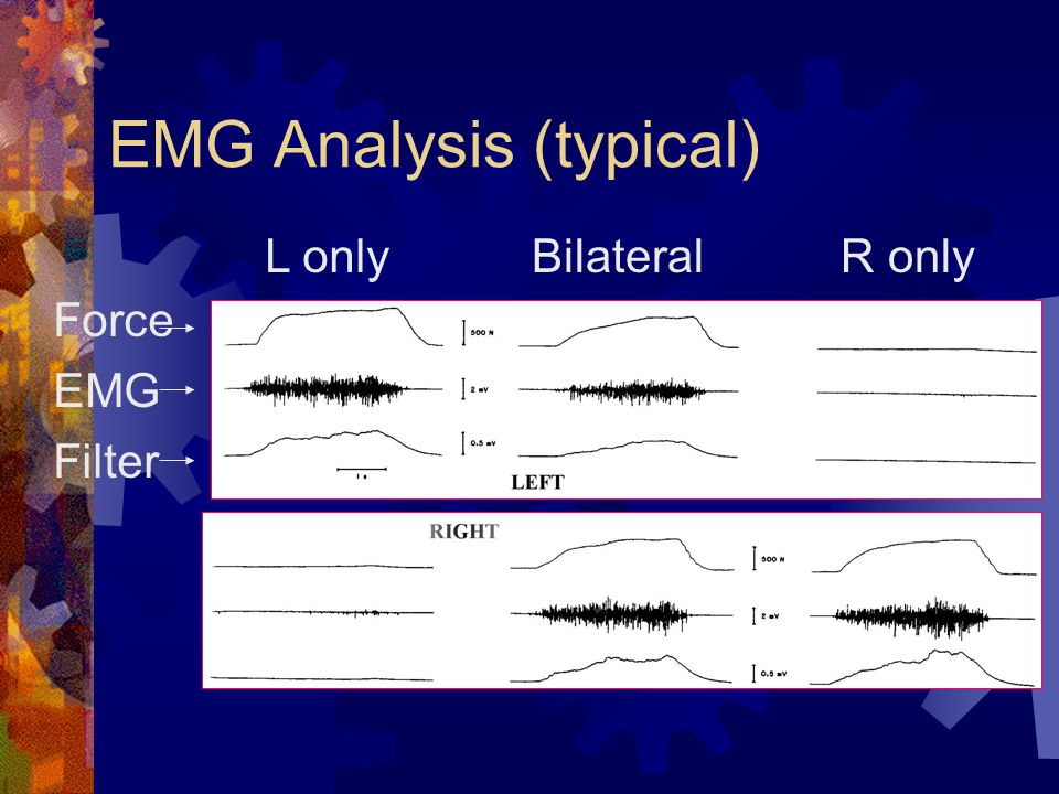 EMG Analysis (typical) Force EMG Filter L onlyR onlyBilateral