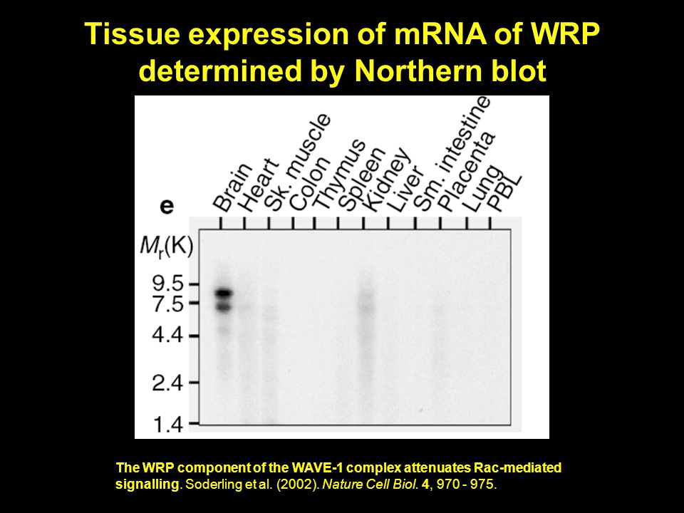 Tissue expression of mRNA of WRP determined by Northern blot The WRP component of the WAVE-1 complex attenuates Rac-mediated signalling.