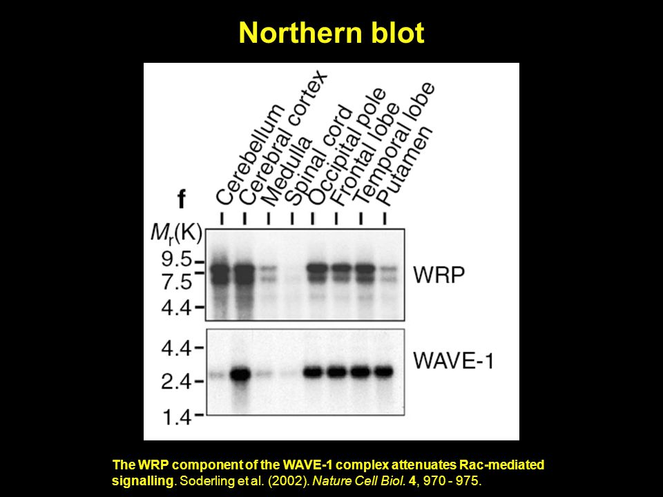 Northern blot The WRP component of the WAVE-1 complex attenuates Rac-mediated signalling.