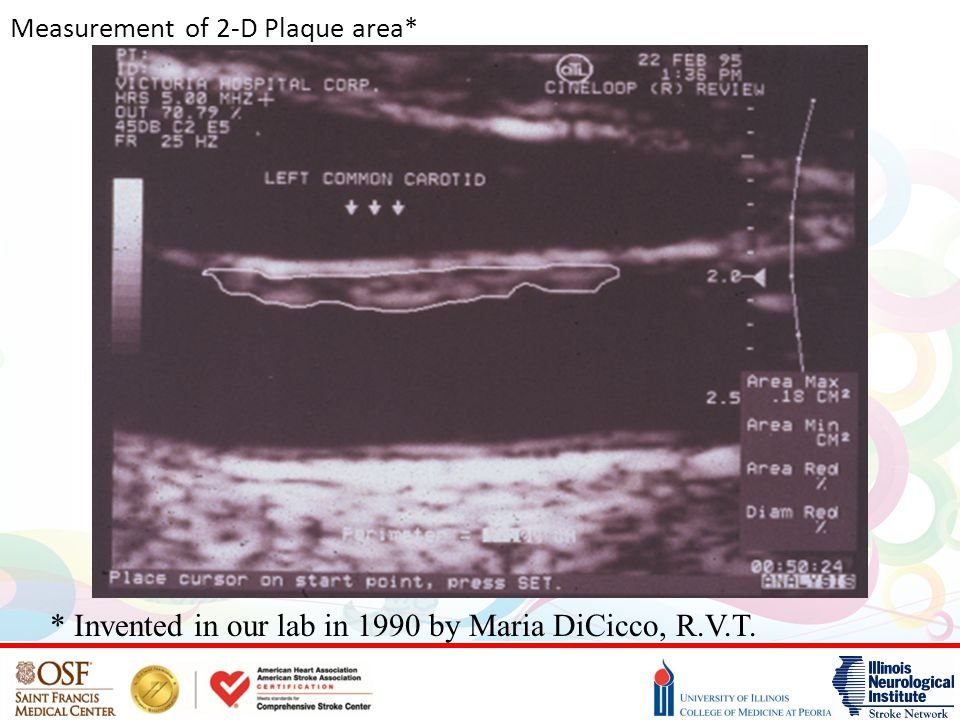 Measurement of 2-D Plaque area* * Invented in our lab in 1990 by Maria DiCicco, R.V.T.