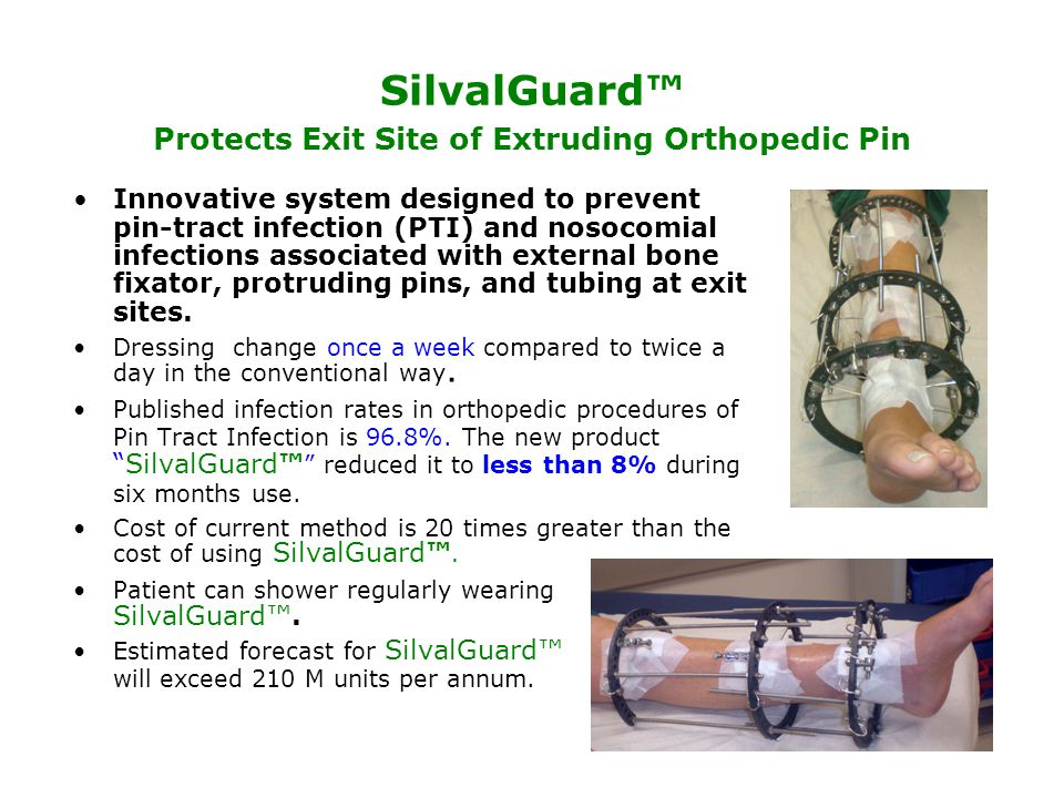 SilvalGuard™ Protects Exit Site of Extruding Orthopedic Pin Innovative system designed to prevent pin-tract infection (PTI) and nosocomial infections associated with external bone fixator, protruding pins, and tubing at exit sites.