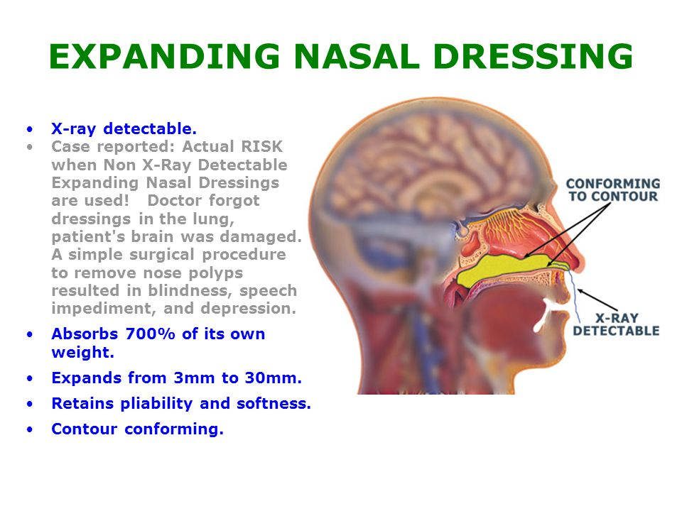 EXPANDING NASAL DRESSING X-ray detectable.