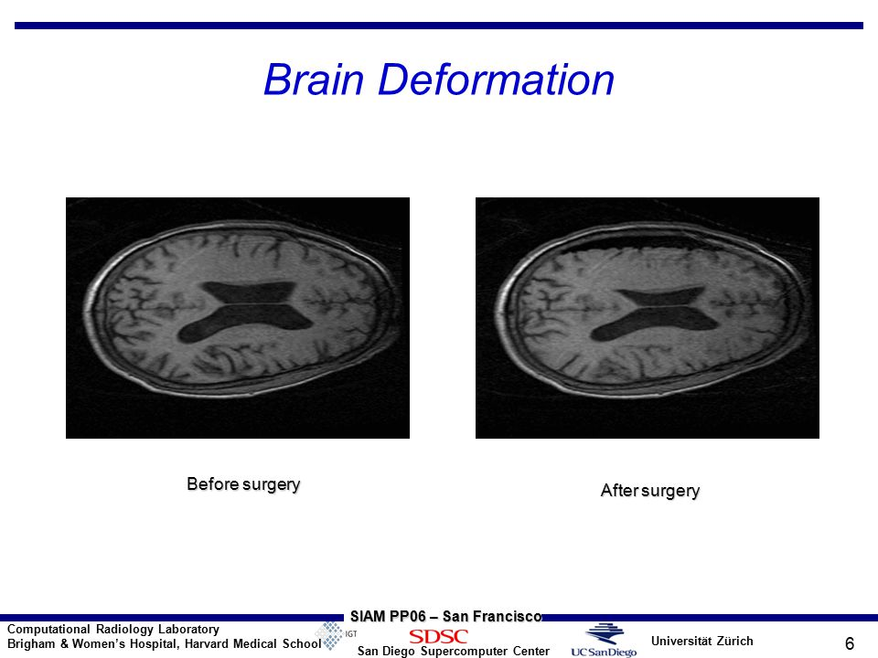 Universität Zürich San Diego Supercomputer Center Computational Radiology Laboratory Brigham & Women's Hospital, Harvard Medical School SIAM PP06 – San Francisco 6 Brain Deformation Before surgery After surgery