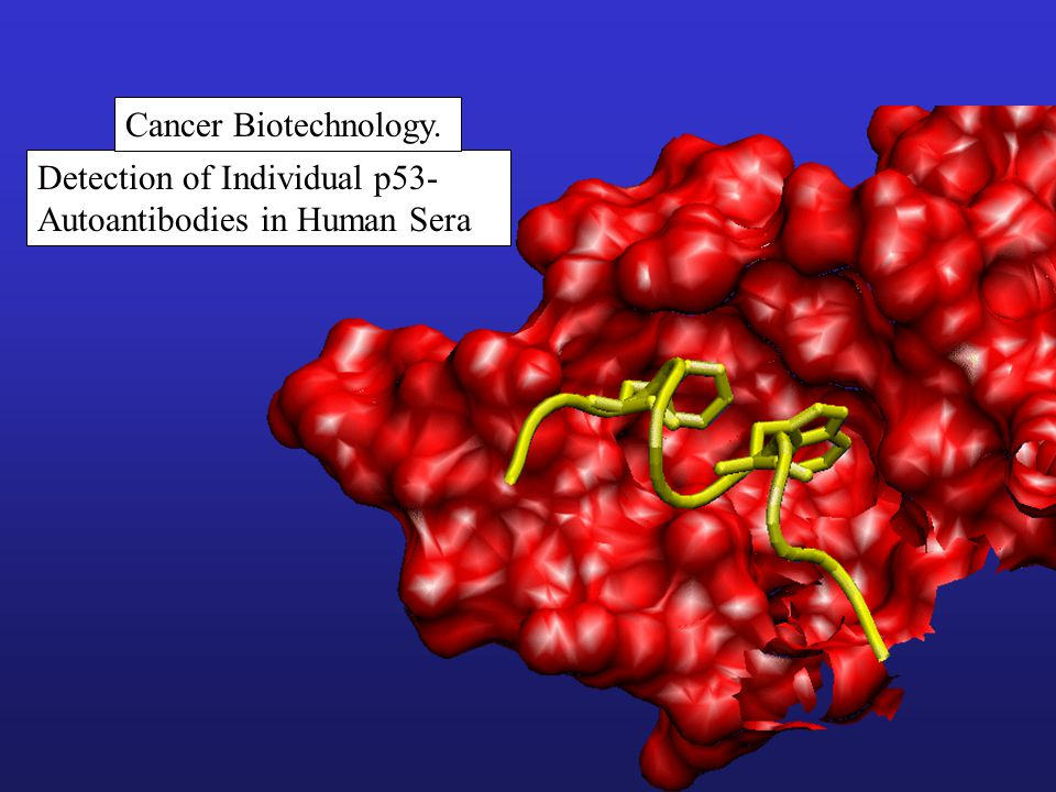 Detection of Individual p53- Autoantibodies in Human Sera Cancer Biotechnology.