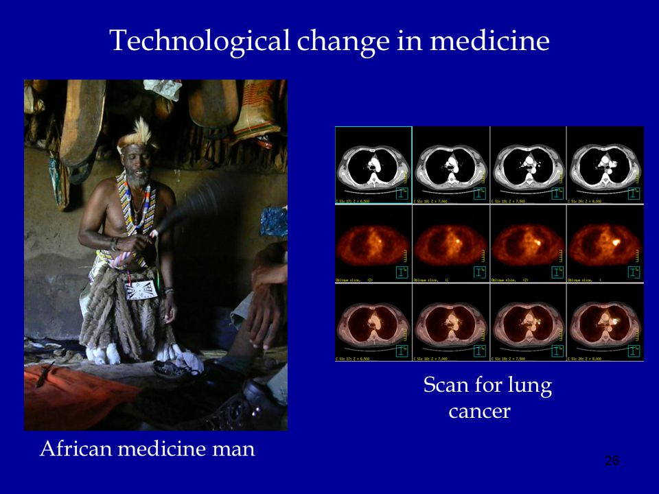 Technological change in medicine Scan for lung cancer 26 African medicine man
