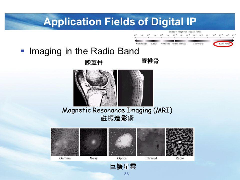 Application Fields of Digital IP  Imaging in the Radio Band Magnetic Resonance Imaging (MRI) 磁振造影術 膝蓋骨 脊椎骨 巨蟹星雲 35