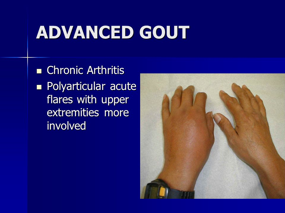 ADVANCED GOUT Chronic Arthritis Chronic Arthritis Polyarticular acute flares with upper extremities more involved Polyarticular acute flares with upper extremities more involved