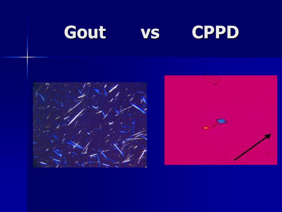 Gout vs CPPD