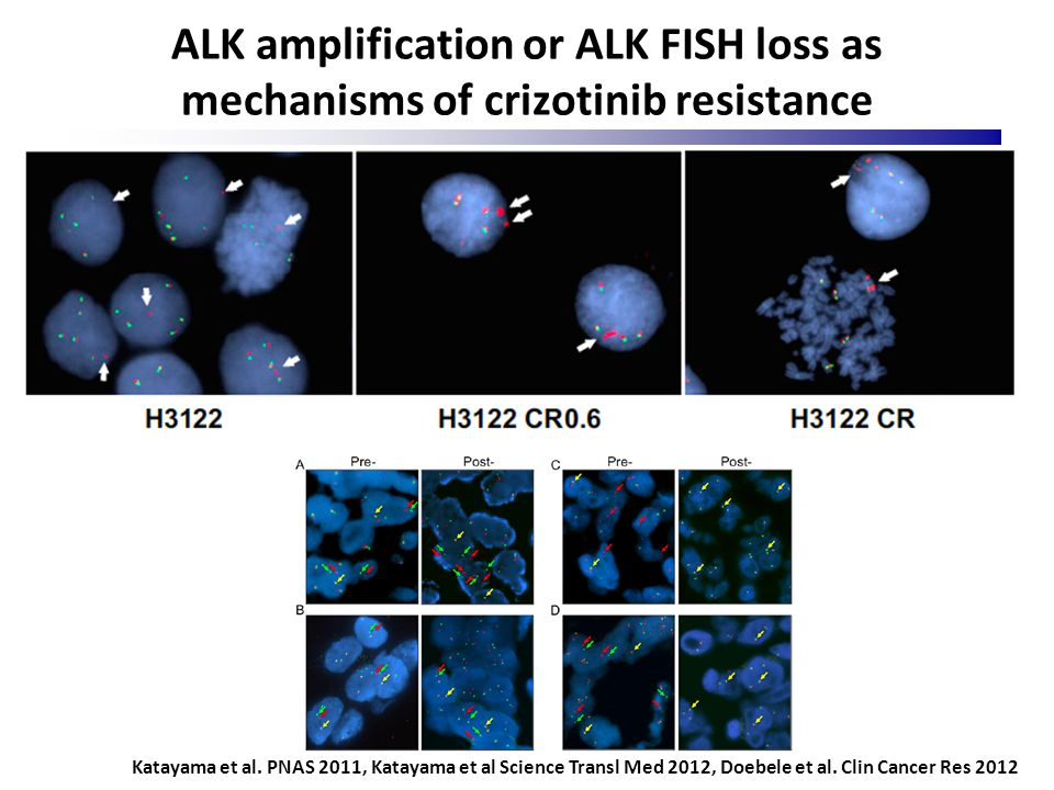 ALK amplification or ALK FISH loss as mechanisms of crizotinib resistance Katayama et al. PNAS 2011, Katayama et al Science Transl Med 2012, Doebele e
