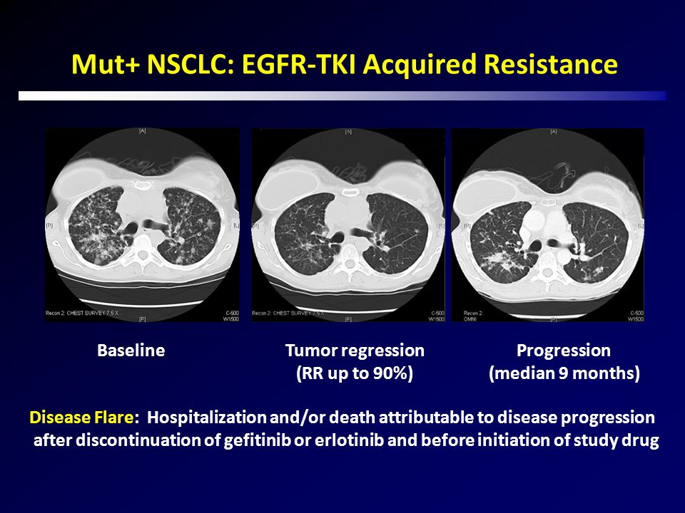 Mut+ NSCLC: EGFR-TKI Acquired Resistance Baseline Tumor regression (RR up to 90%) Progression (median 9 months) Disease Flare: Hospitalization and/or