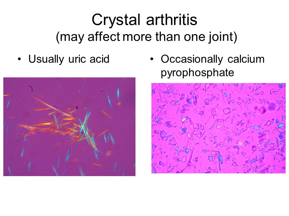 Crystal arthritis (may affect more than one joint) Usually uric acidOccasionally calcium pyrophosphate