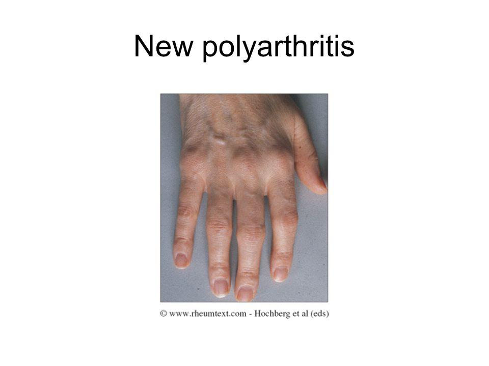New polyarthritis