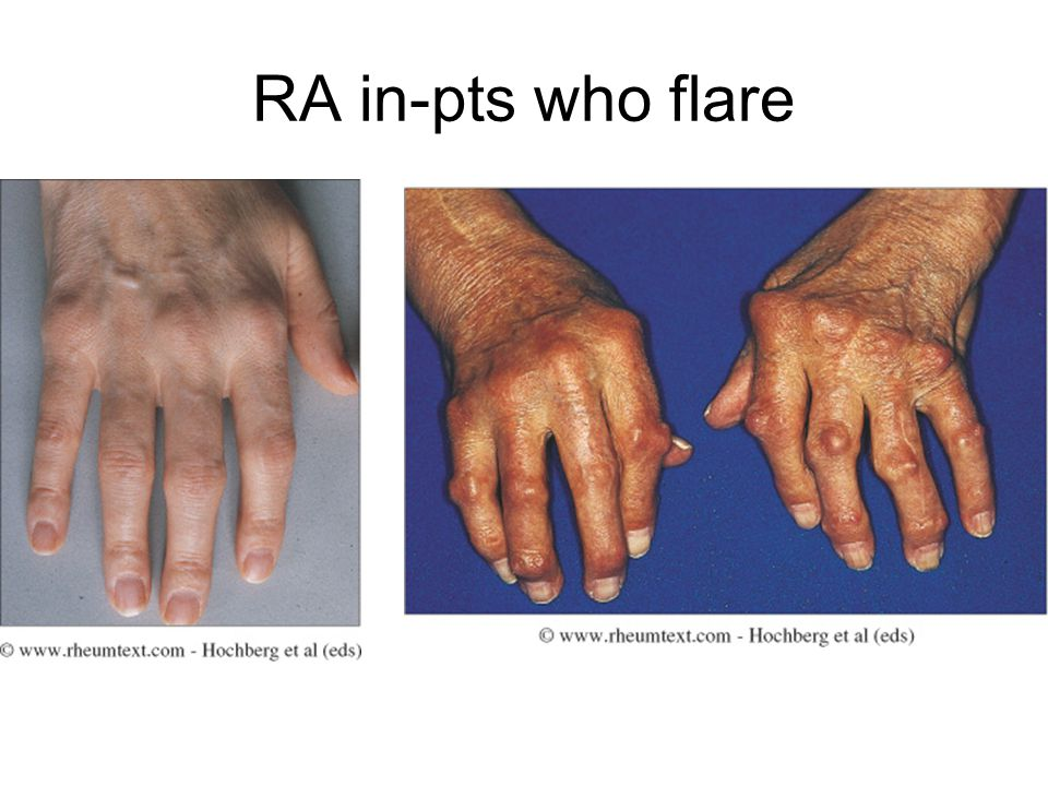 RA in-pts who flare