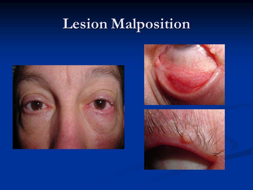 Lesion Malposition