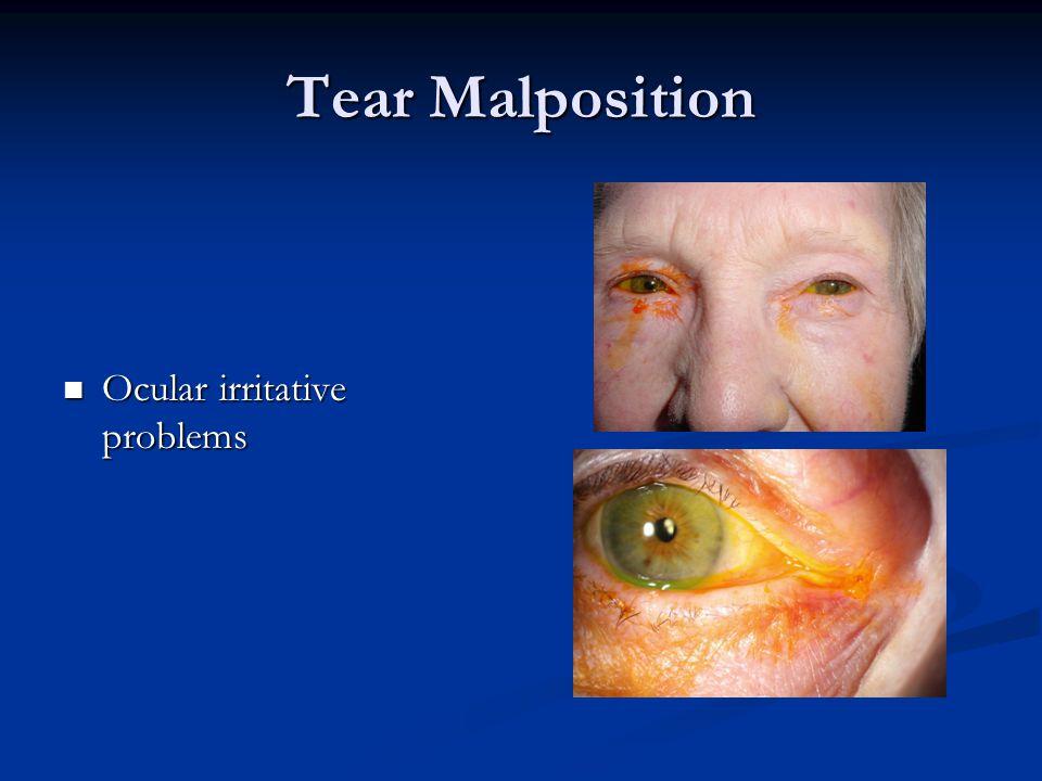 Tear Malposition Ocular irritative problems Ocular irritative problems