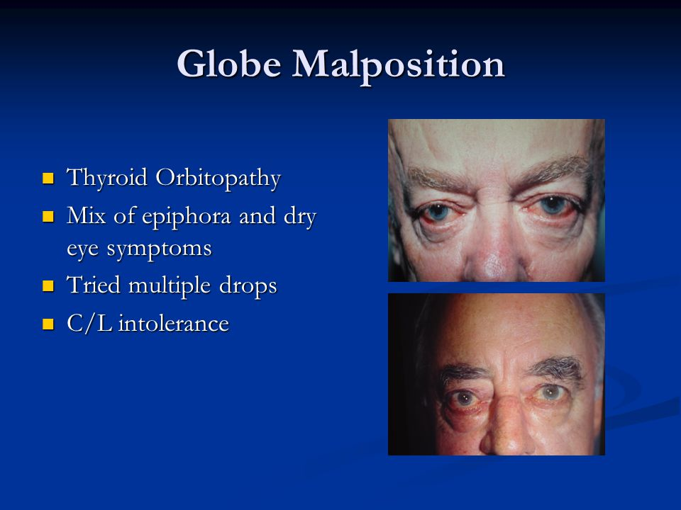 Globe Malposition Thyroid Orbitopathy Thyroid Orbitopathy Mix of epiphora and dry eye symptoms Mix of epiphora and dry eye symptoms Tried multiple drops Tried multiple drops C/L intolerance C/L intolerance