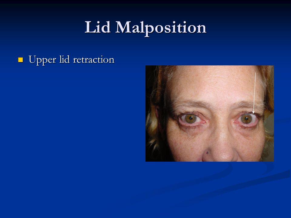 Lid Malposition Upper lid retraction Upper lid retraction