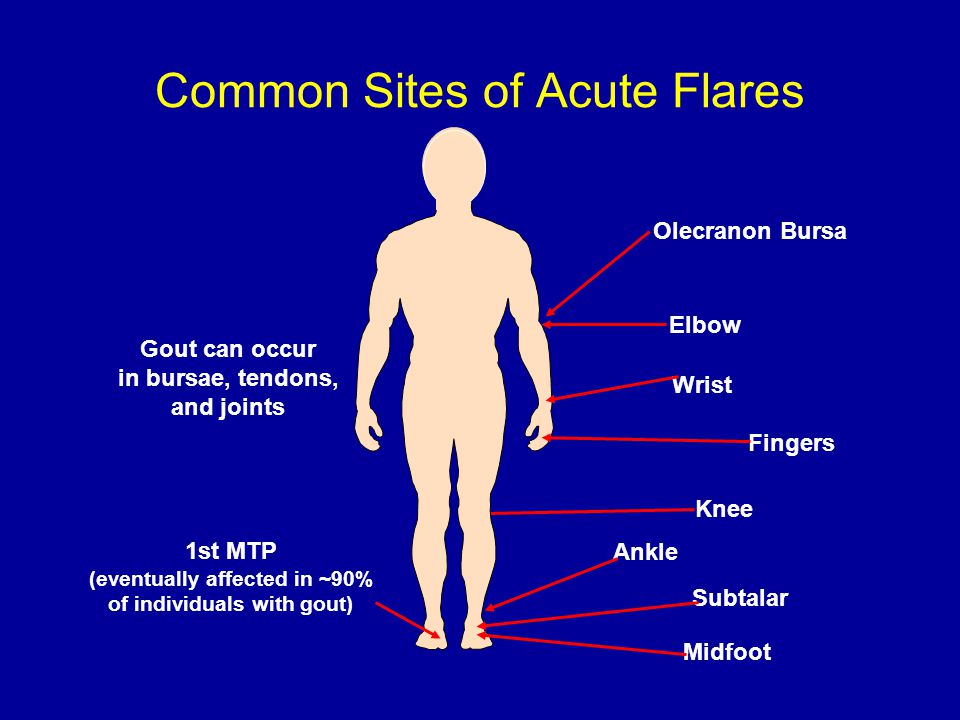 Common Sites of Acute Flares Midfoot Gout can occur in bursae, tendons, and joints Olecranon Bursa Elbow Wrist Knee Ankle Subtalar 1st MTP (eventually affected in ~90% of individuals with gout) Fingers