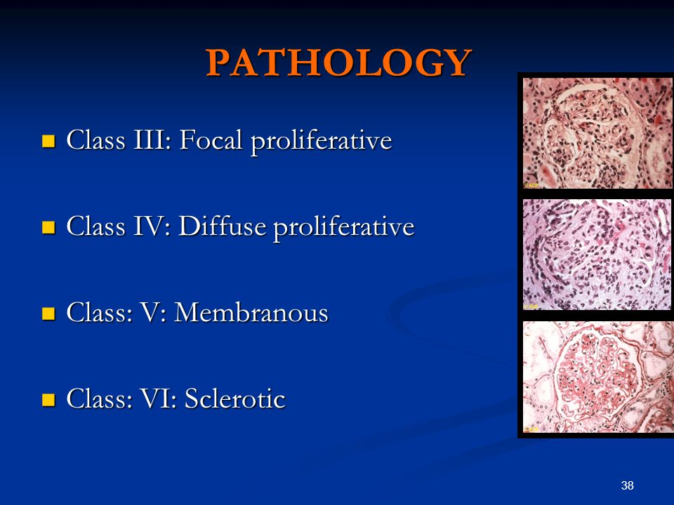 38 PATHOLOGY Class III: Focal proliferative Class III: Focal proliferative Class IV: Diffuse proliferative Class IV: Diffuse proliferative Class: V: Membranous Class: V: Membranous Class: VI: Sclerotic Class: VI: Sclerotic