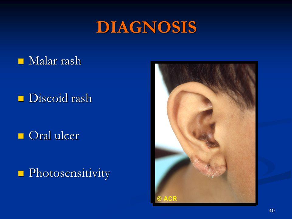 40 DIAGNOSIS Malar rash Malar rash Discoid rash Discoid rash Oral ulcer Oral ulcer Photosensitivity Photosensitivity