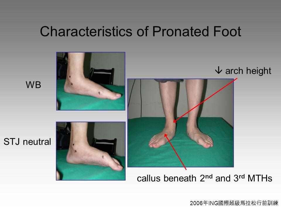 2006 年 ING 國際超級馬拉松行前訓練 Characteristics of Pronated Foot  arch height callus beneath 2 nd and 3 rd MTHs WB STJ neutral
