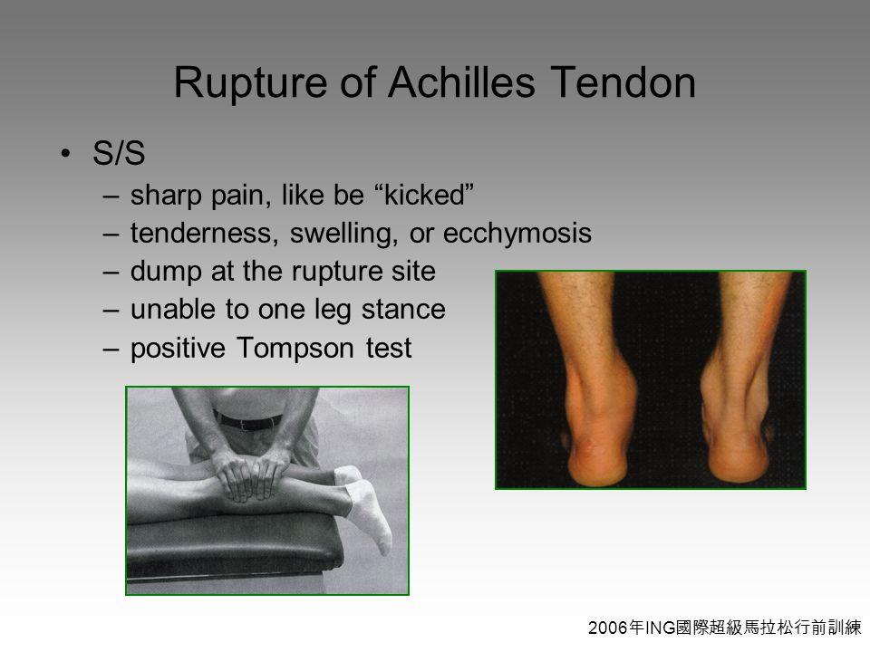 2006 年 ING 國際超級馬拉松行前訓練 Rupture of Achilles Tendon S/S –sharp pain, like be kicked –tenderness, swelling, or ecchymosis –dump at the rupture site –unable to one leg stance –positive Tompson test