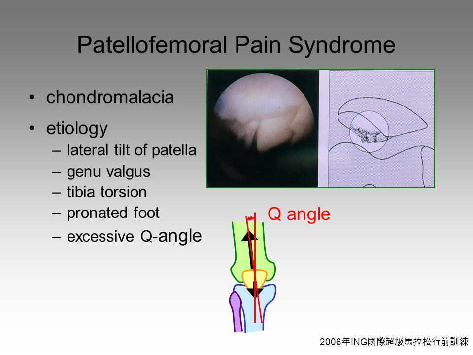 2006 年 ING 國際超級馬拉松行前訓練 Patellofemoral Pain Syndrome chondromalacia etiology –lateral tilt of patella –genu valgus –tibia torsion –pronated foot –excessive Q- angle Q angle