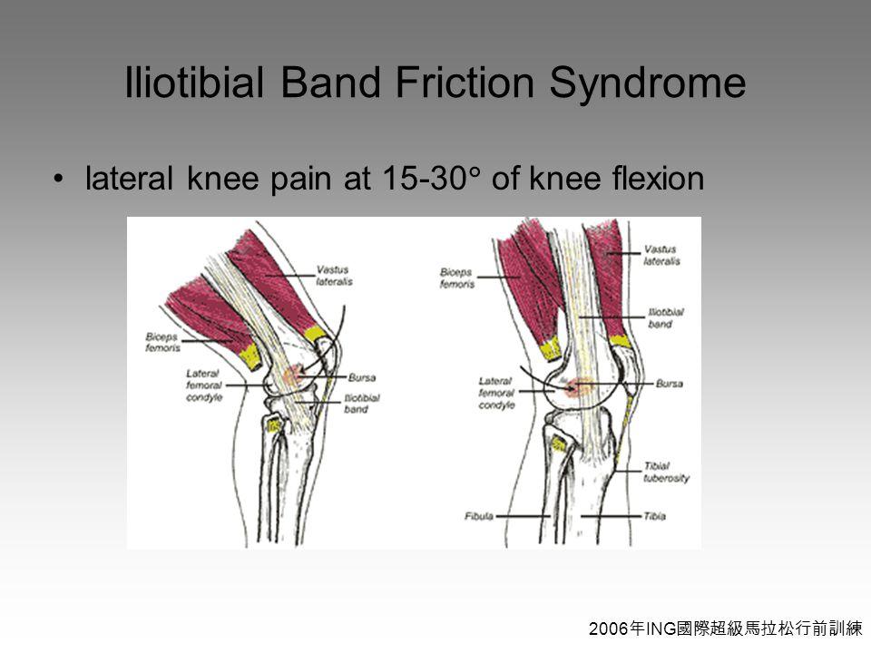 2006 年 ING 國際超級馬拉松行前訓練 Iliotibial Band Friction Syndrome lateral knee pain at 15-30  of knee flexion