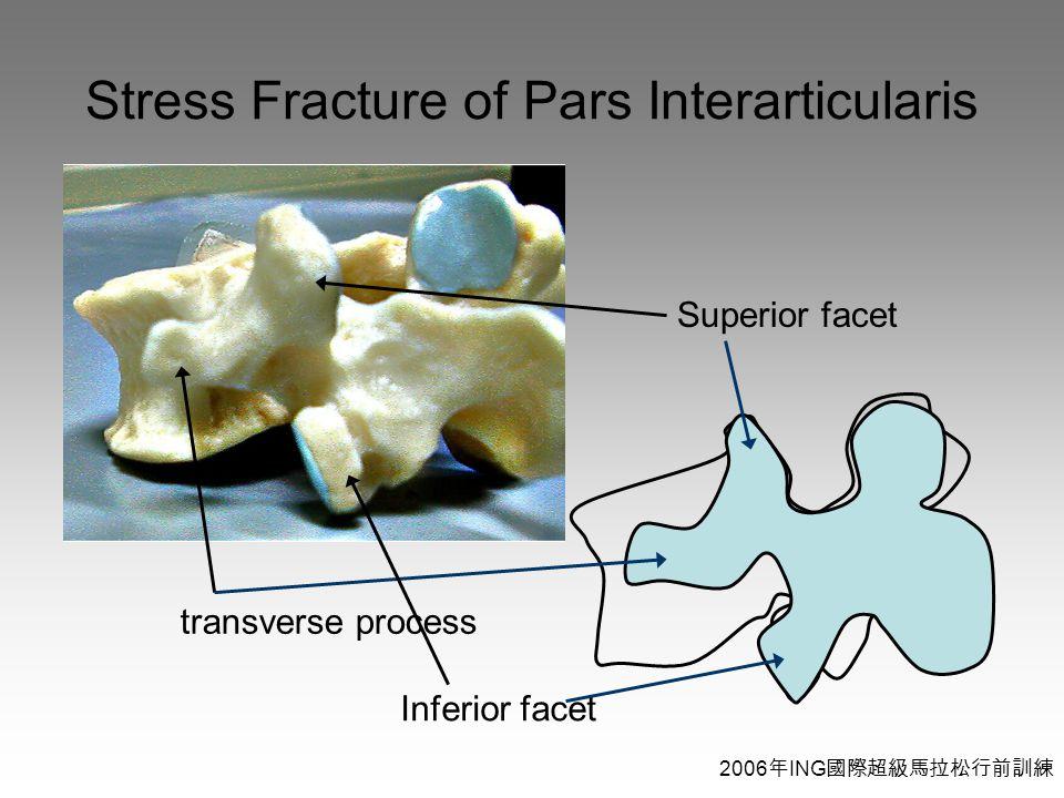 2006 年 ING 國際超級馬拉松行前訓練 Stress Fracture of Pars Interarticularis transverse process Superior facet Inferior facet