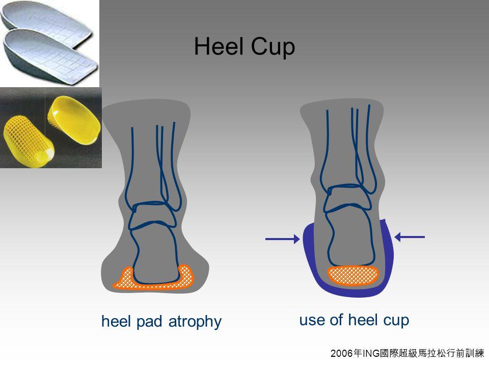 2006 年 ING 國際超級馬拉松行前訓練 Heel Cup heel pad atrophy use of heel cup