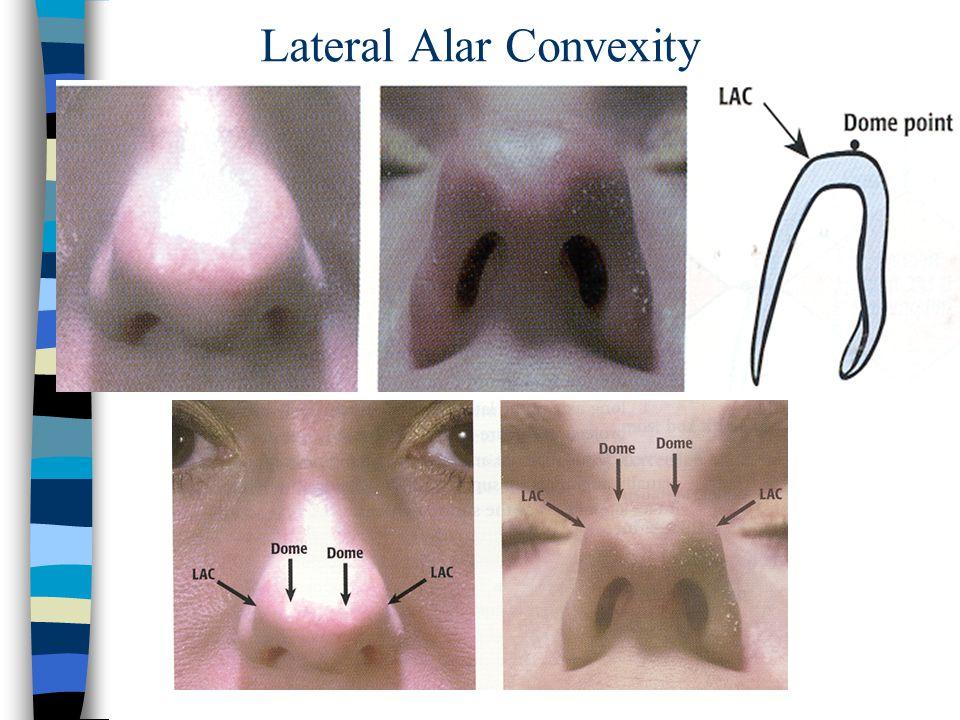 Lateral Alar Convexity