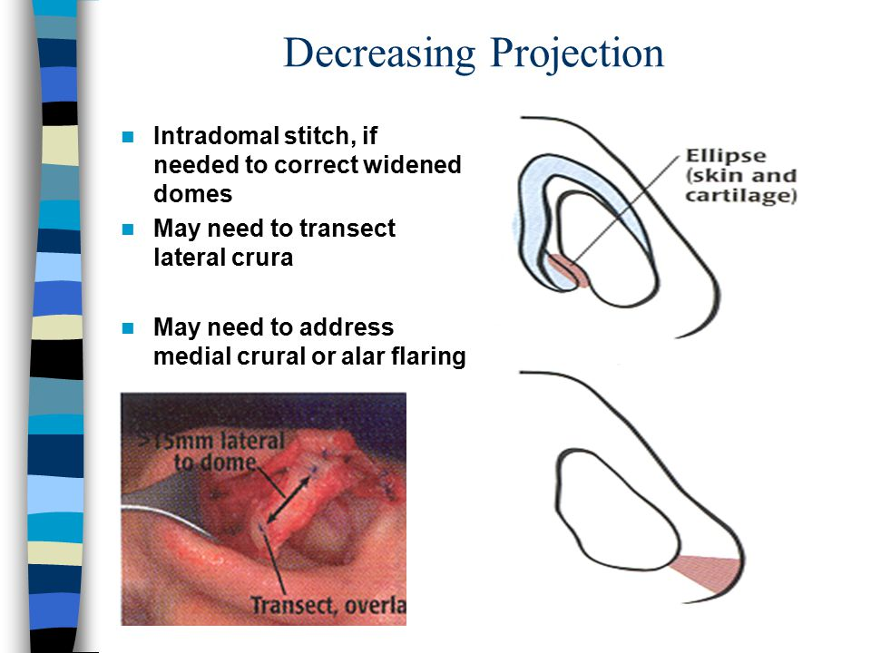 Decreasing Projection Intradomal stitch, if needed to correct widened domes May need to transect lateral crura May need to address medial crural or al