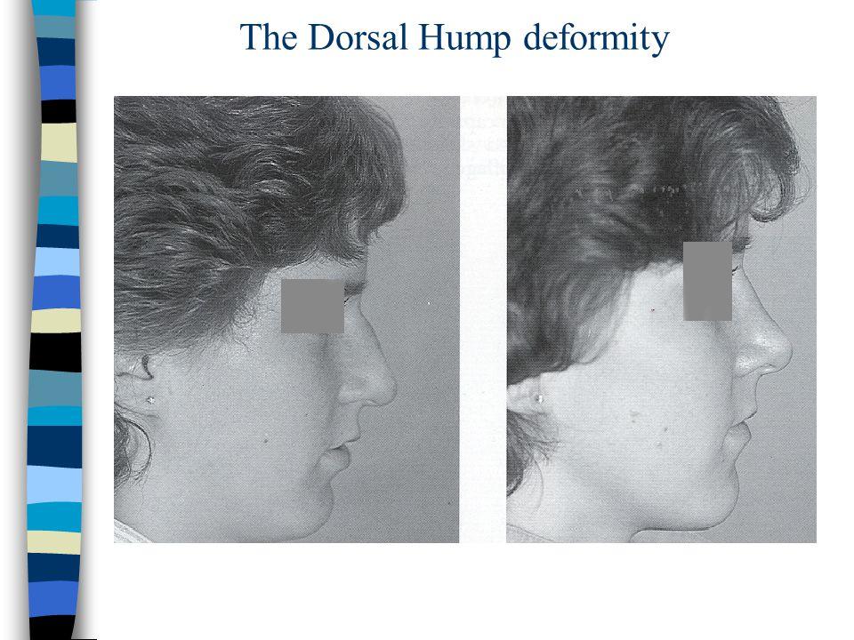 The Dorsal Hump deformity