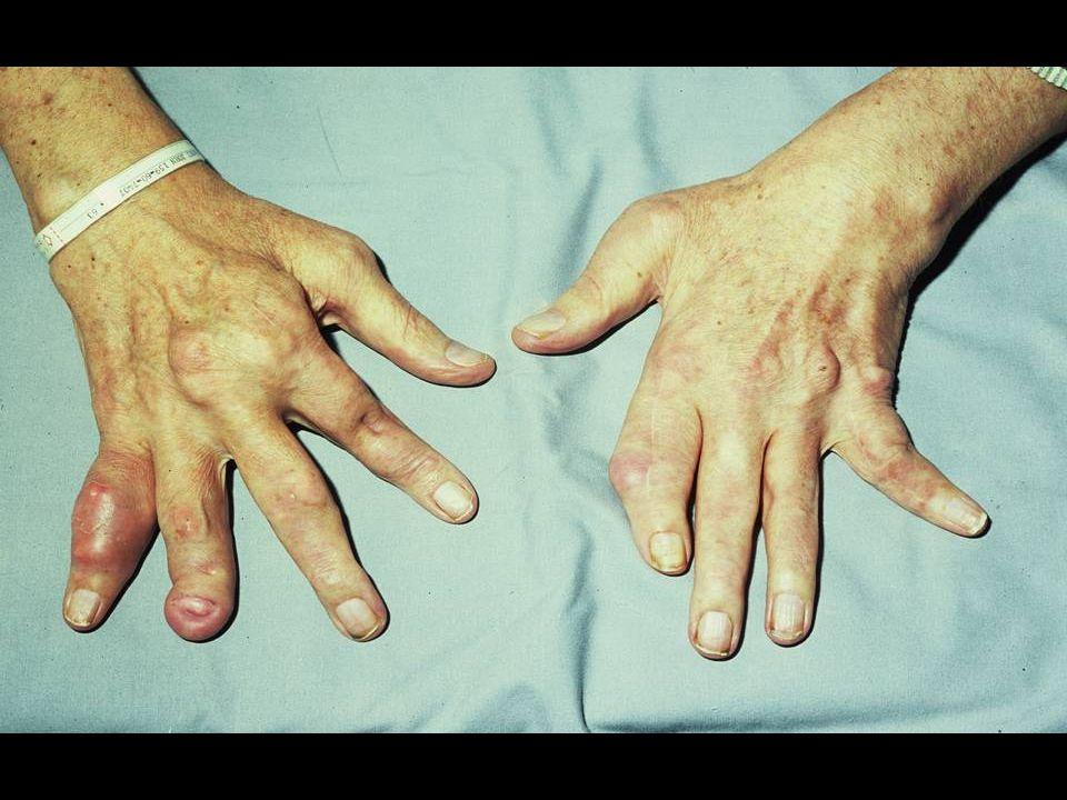 Drugs Potentially Affected by Probenecid Therapy Ampicillin Penicillin Nafcillin Cephradine Cephaloridin Salicylates Indomethacin Heparin Dapsone Methotrexate Rifampicin