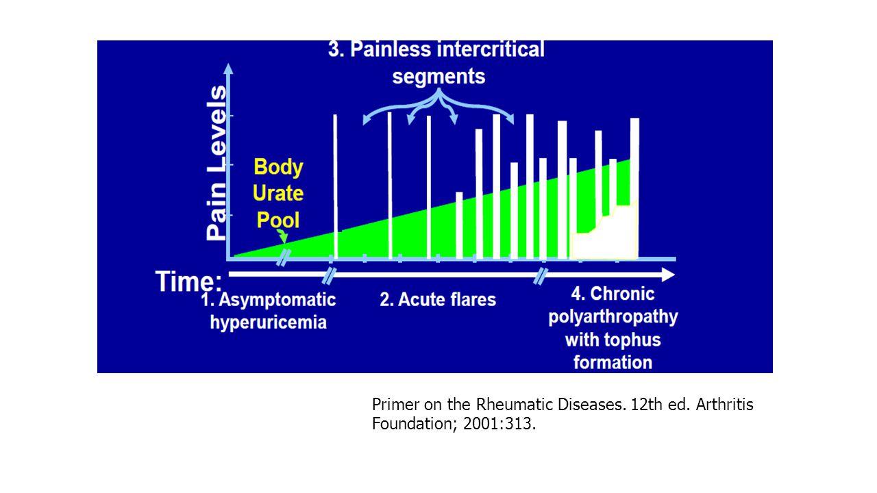 Primer on the Rheumatic Diseases. 12th ed. Arthritis Foundation; 2001:313.