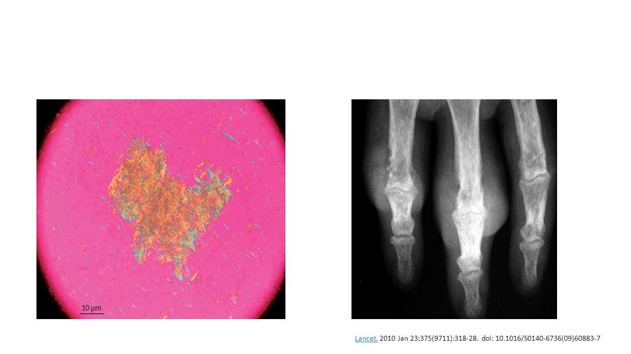 Lancet.Lancet. 2010 Jan 23;375(9711):318-28. doi: 10.1016/S0140-6736(09)60883-7