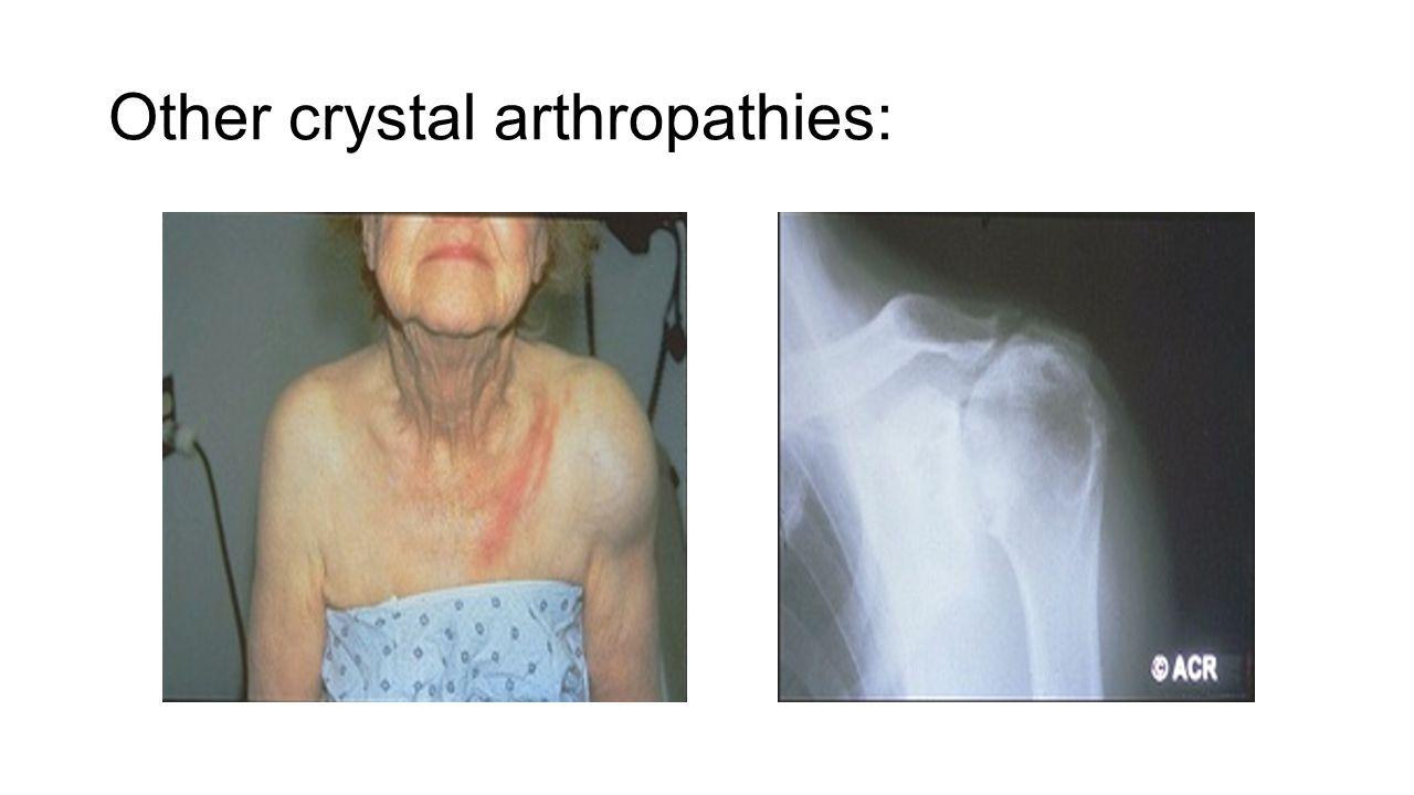Other crystal arthropathies: