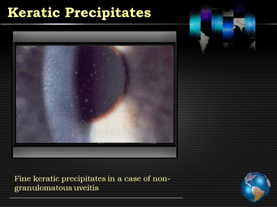 Keratic Precipitates Old keratic precipitates seen in the Arlt's triangle of corneal endothelium
