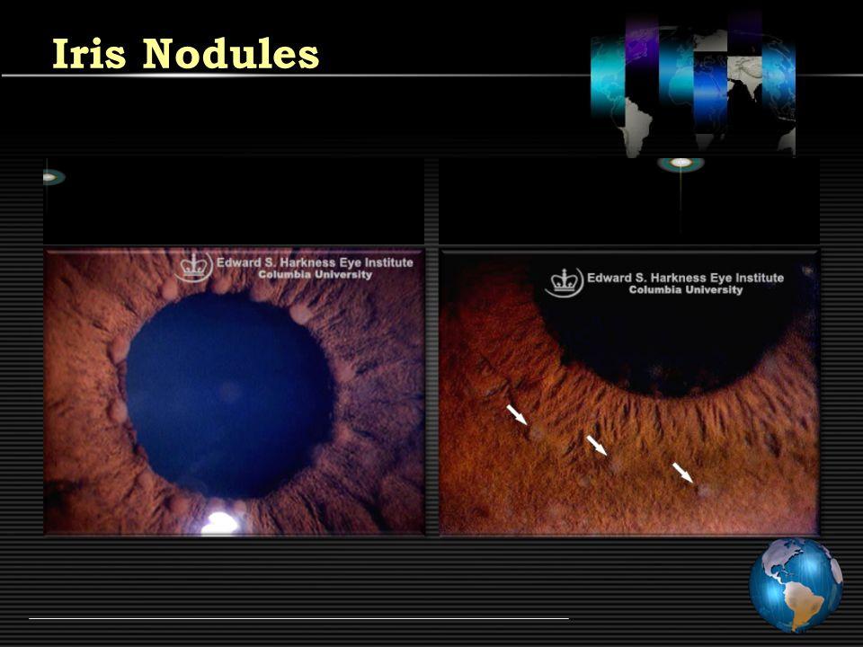 Iris Nodules