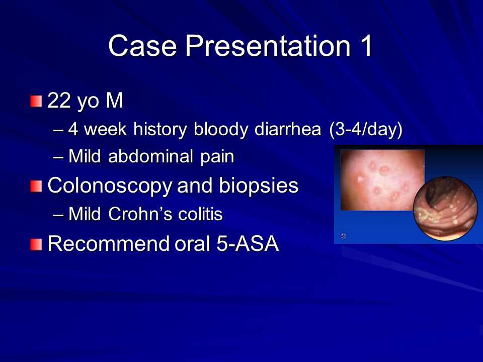 Case Presentation 1 22 yo M –4 week history bloody diarrhea (3-4/day) –Mild abdominal pain Colonoscopy and biopsies –Mild Crohn's colitis Recommend oral 5-ASA