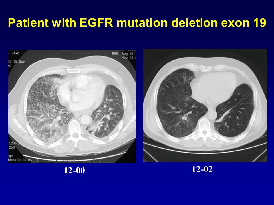 12-00 12-02 Patient with EGFR mutation deletion exon 19