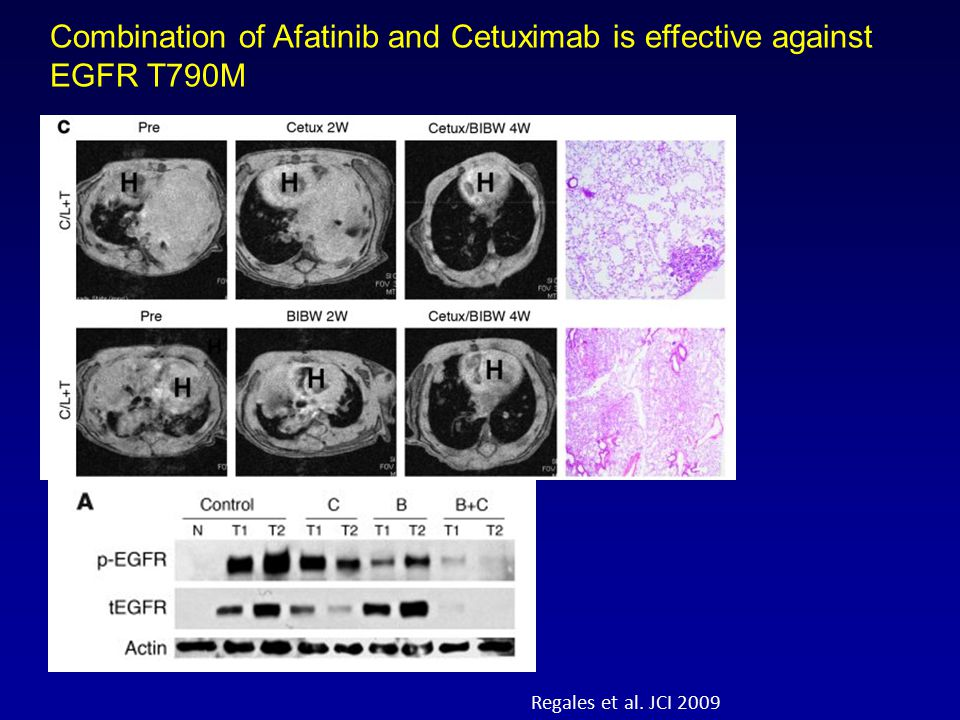 Regales et al. JCI 2009 Combination of Afatinib and Cetuximab is effective against EGFR T790M