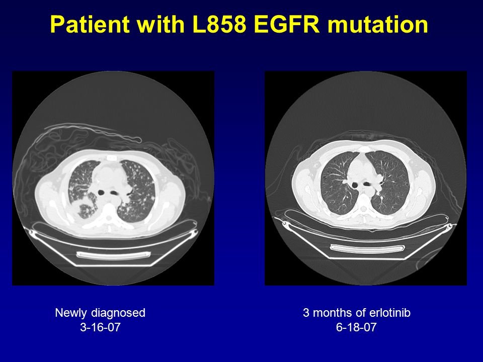 Newly diagnosed 3-16-07 3 months of erlotinib 6-18-07 Patient with L858 EGFR mutation