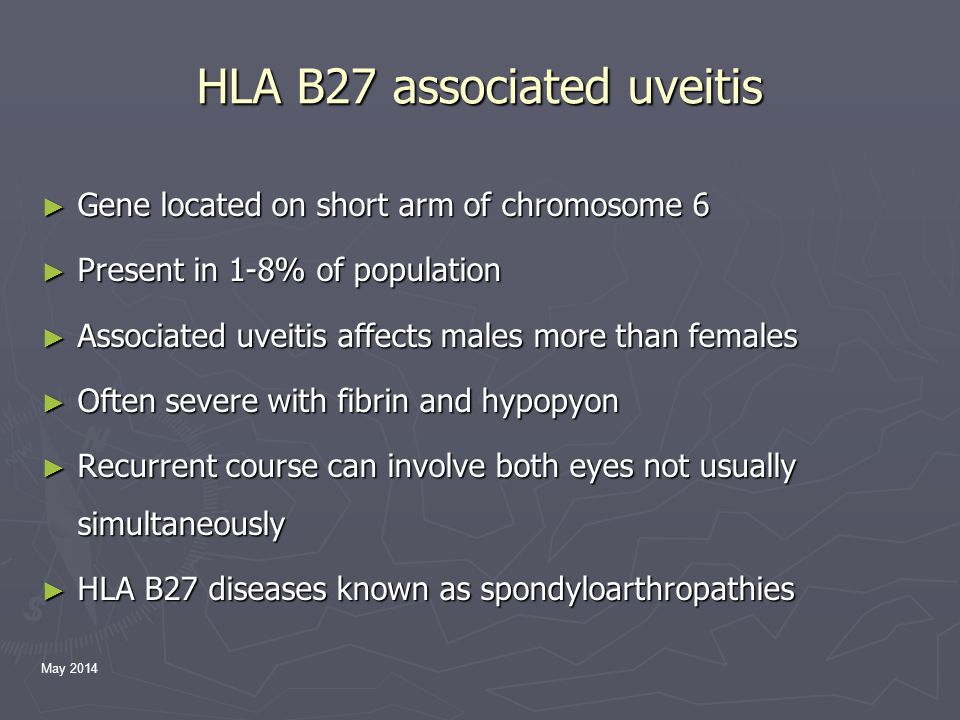 May 2014 HLA B27 associated uveitis ► Gene located on short arm of chromosome 6 ► Present in 1-8% of population ► Associated uveitis affects males more than females ► Often severe with fibrin and hypopyon ► Recurrent course can involve both eyes not usually simultaneously ► HLA B27 diseases known as spondyloarthropathies