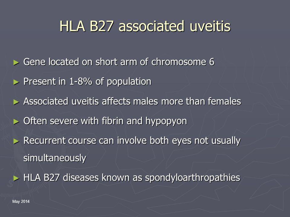 May 2014 Associated systemic HLA B27+ve diseases ► Ankylosing Spondylitis ► Reactive arthritis (Reiter syndrome) ► Inflammatory bowel disease ► Psoriatic arthritis ► Undifferentiated spondyloarthropathy