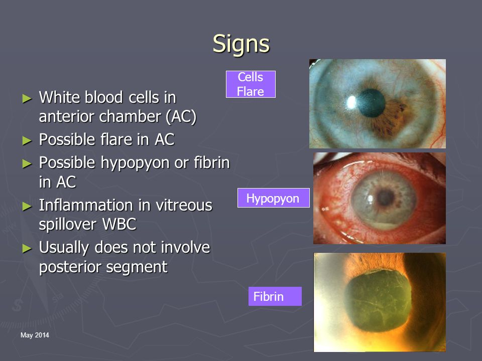 May 2014 Signs ► White blood cells in anterior chamber (AC) ► Possible flare in AC ► Possible hypopyon or fibrin in AC ► Inflammation in vitreous spillover WBC ► Usually does not involve posterior segment Cells Flare Hypopyon Fibrin