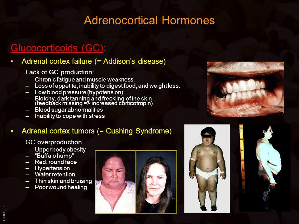 BIMM118 Adrenocortical Hormones Glucocorticoids (GC): Adrenal cortex failure (= Addison's disease) Lack of GC production: –Chronic fatigue and muscle